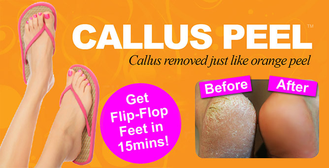 NEW Callus Peel Foot Treatment